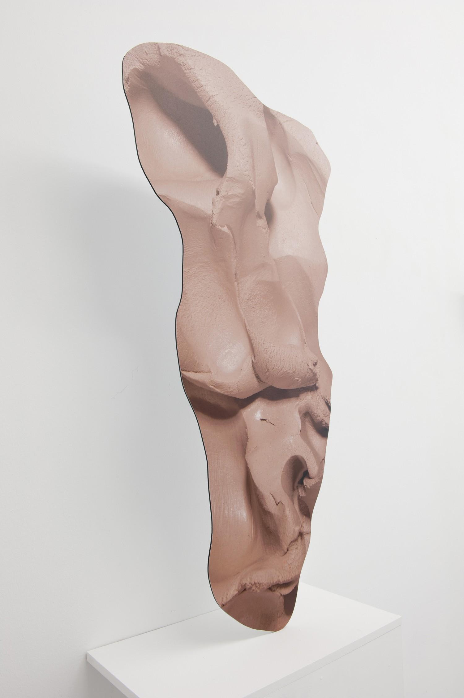Connective tissue — © 2015, Rachel de Joode